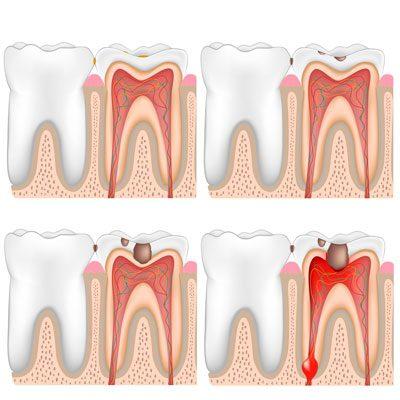 Odontología Conservadora en Centro Médico Dental Benalua en Alicante y Callosa de Segura