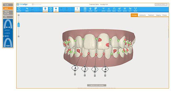 invisalign ortodoncia invisible precio