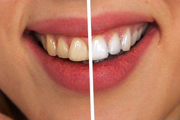 blanquemiento dental precio