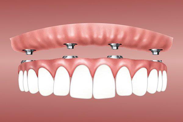 implantosoportada removible protesis