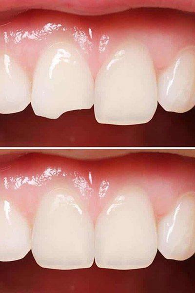 diente roto arreglo