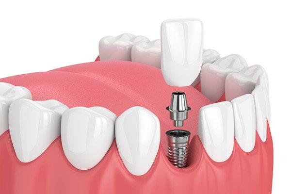 diente roto implante
