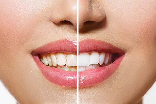 blanqueamiento dental benalua alicante