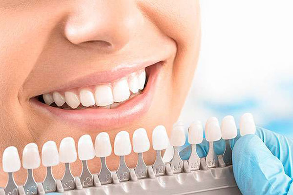 blanqueamiento dental bleaching alicante