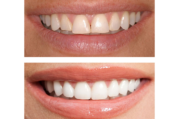 contorneado dental alicante