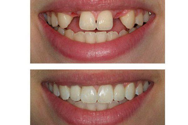 implantes dentales antes y despues