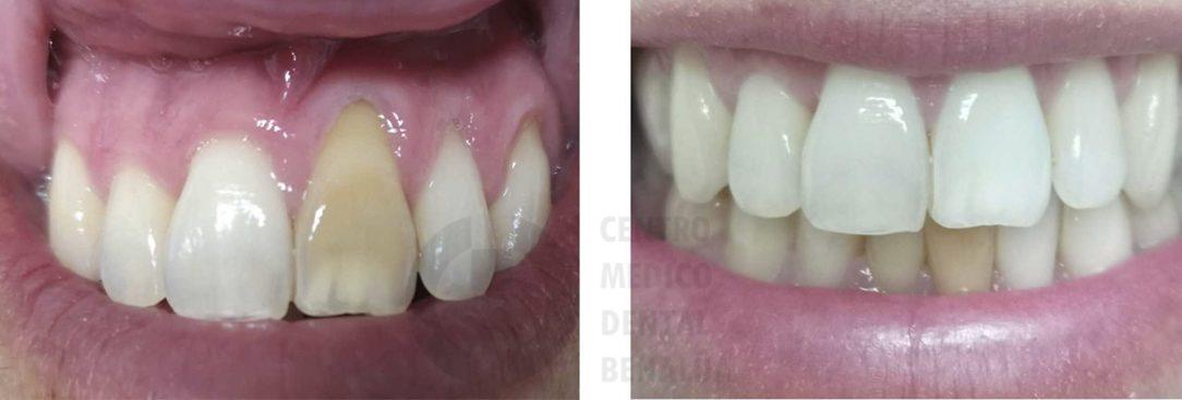 blanqueamiento interno diente alicante