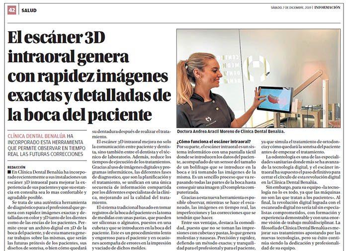 escaner 3d intraoral
