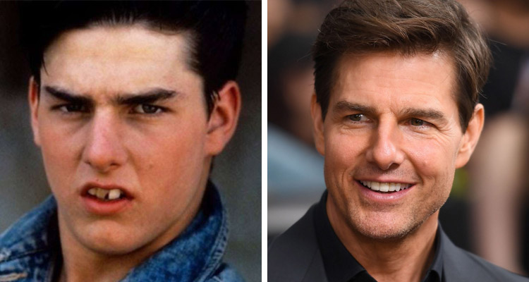 tom cruise carillas